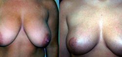 breast-reduction-bxa5